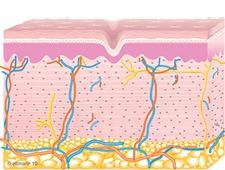 Collagen Remodeling | TempSure Envi