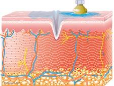 Collagen Synthesis Begins | TempSure Envi