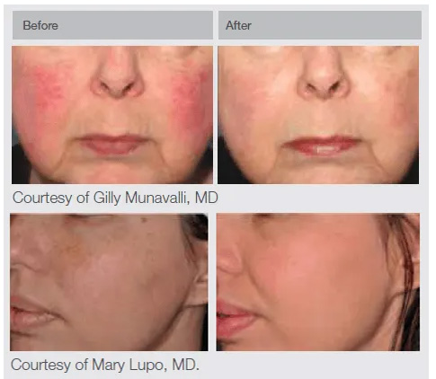 Lumenis IPL Before and After