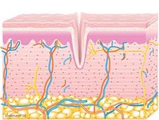 Untreated Skin | TempSure Envi
