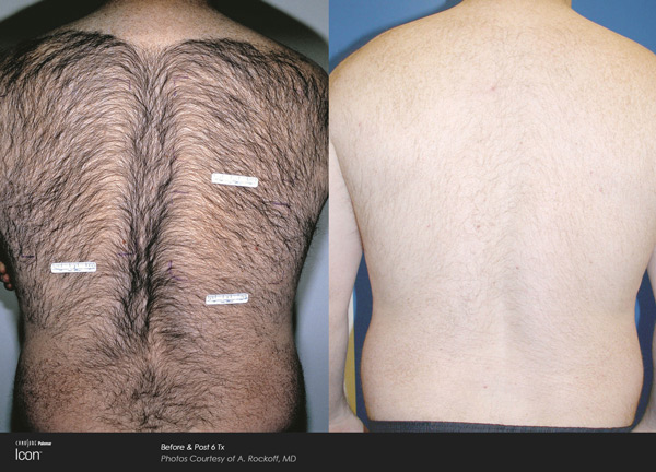 hair_removal_1