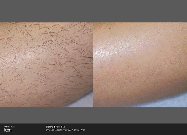 hair_removal_2