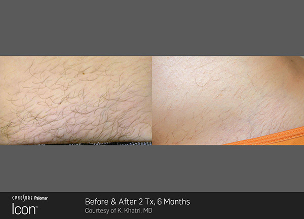 hair_removal_7